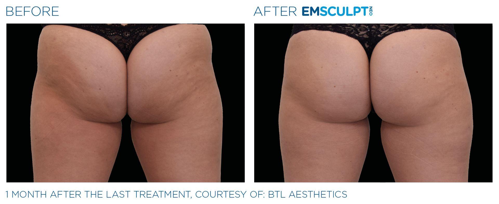 Emsculpt_neo_PIC_Ba-card-female-buttock-061